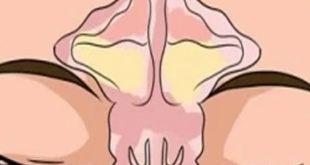 nariz taponada