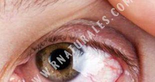 restaurar la vista